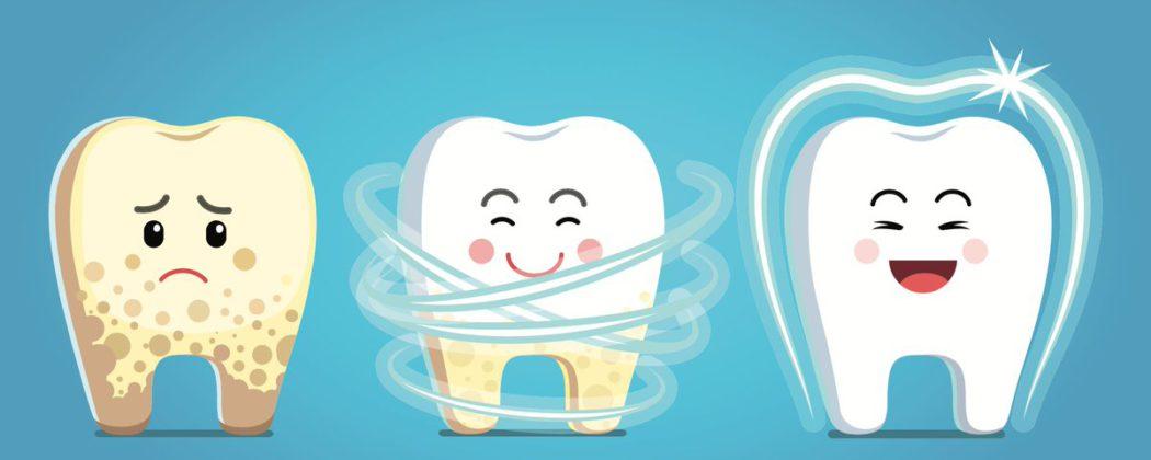 Рекомендуем производить чистку от зубного камня - залог продолжительного здоровья зубов!